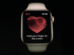 Apple watch instantly notifies you if it detects an irregular heartbeat